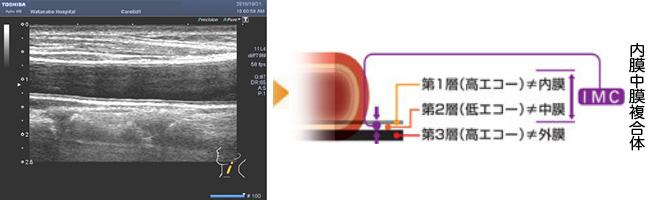 頚動脈超音波検査 動脈硬化の程度
