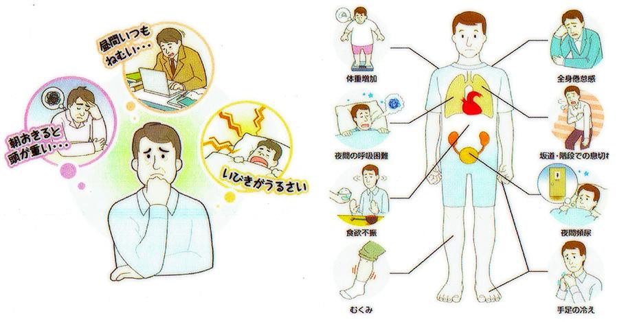 睡眠時無呼吸症候群の症状