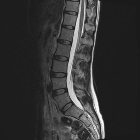 腰椎ドックMRI画像